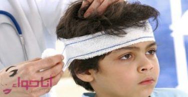 الإسعافات الاولية لإصابات الرأس