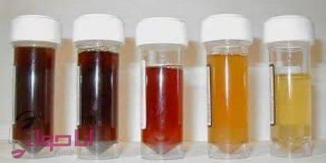 تشخيص المرض من خلال لون البول