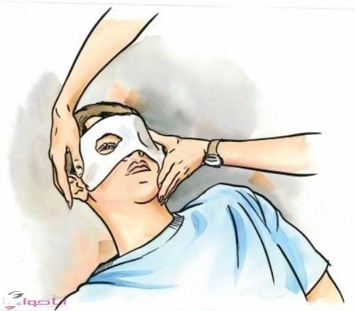 الإسعافات الأولية لإصابات العين
