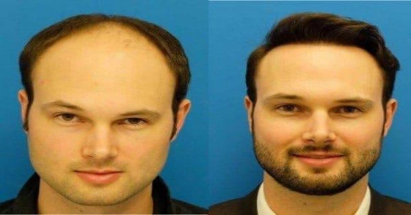 بعد عملية زراعة الشعر باسبوع
