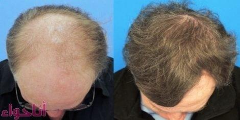 طرق زراعة الشعر