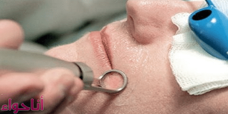 عمليات ازالة الشعر بالليزر