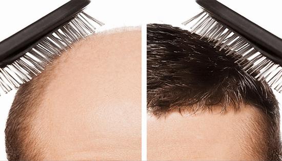 زراعة الشعر -2