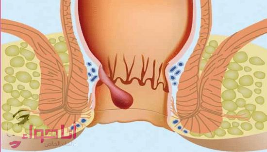 علاج البواسير للحامل -2