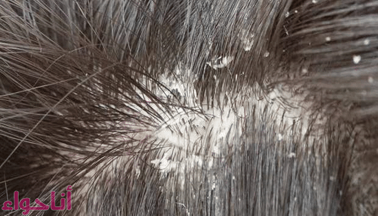 علاج قشرة الشعر -2