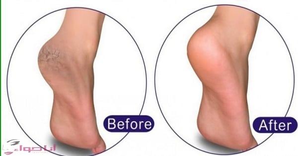 علاج تشقق القدمين بأكتر من طريقة وبسهولة