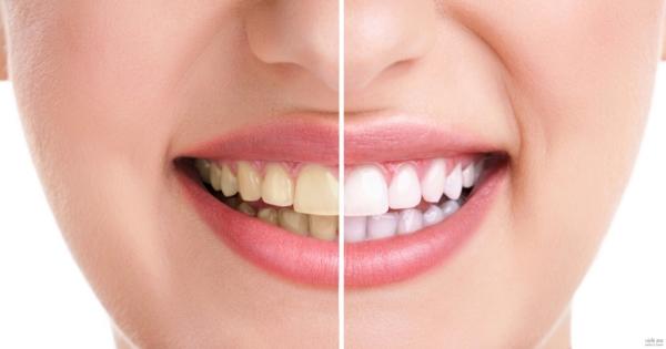 أفضل طريقة لتبيض الاسنان