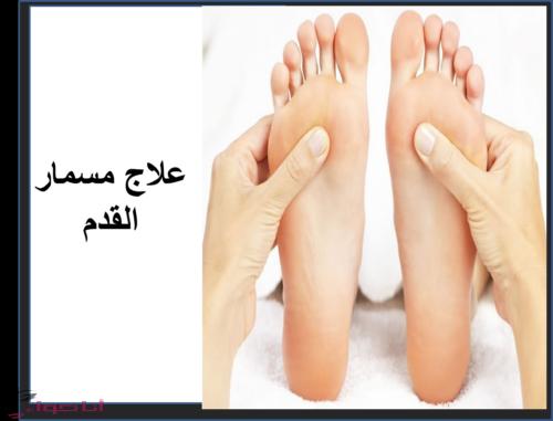 علاج مسمار القدم
