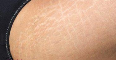 كيف اتخلص من الخطوط البيضاء في الجسم
