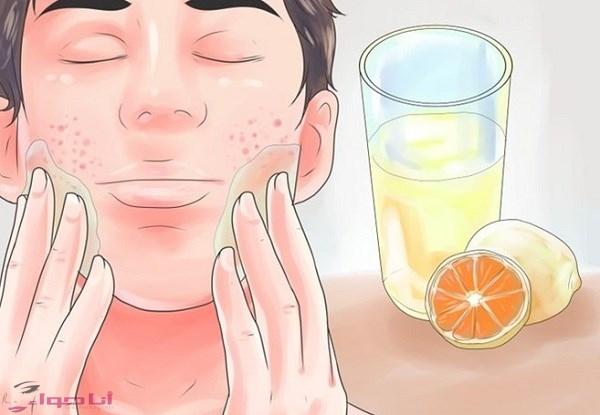 علاج حب الشباب في الوجه بسرعة