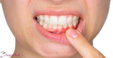 علاج التهاب اللثة والاسنان