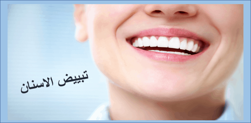 تبيض الاسنان في يوم واحد