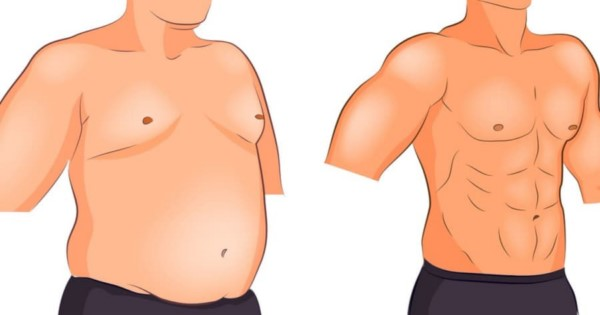 أنواع عمليات شفط الدهون